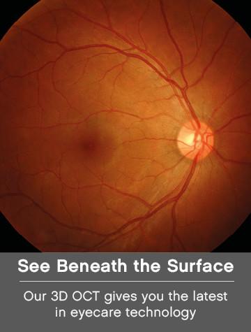3D OCT Eye Scan