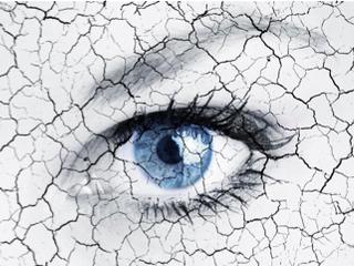 Treating Dry Eye Syndrome