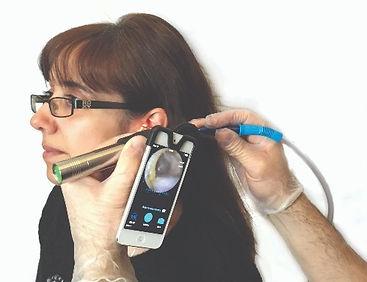 Endoscopy checking for ear wax