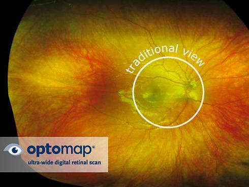 optomap-retinal-scans-1.jpg