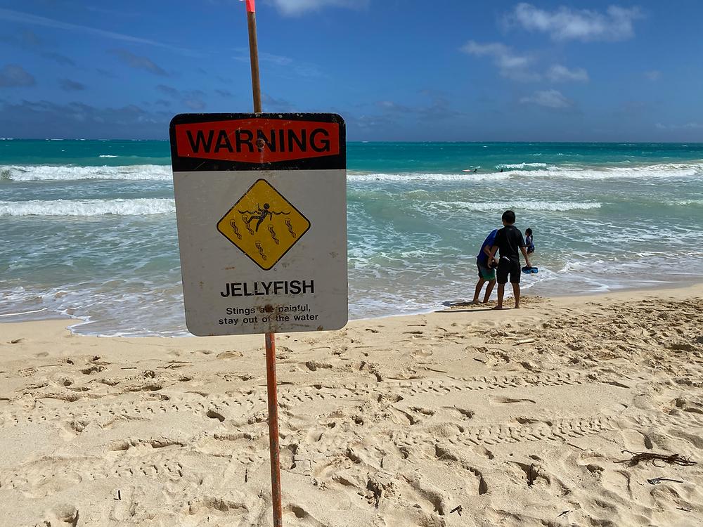 Jellyfish man o war Hawaii beaches Oahu jellyfish stings jellyfish remedy