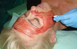 leczenie pijawkami, hirudoterapia, stawianie pijawek