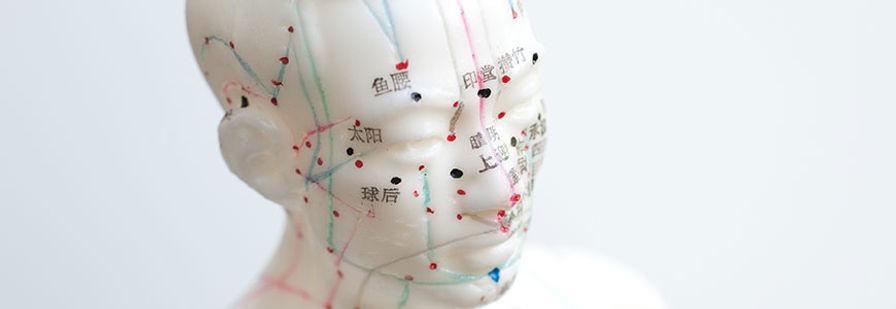 akupunktura-L.jpg