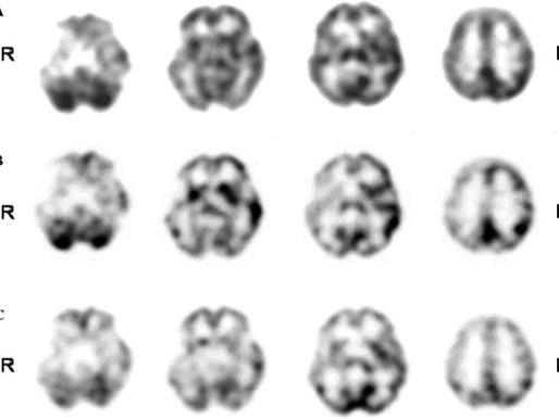 Prosopagnosia and Capgras Syndrome