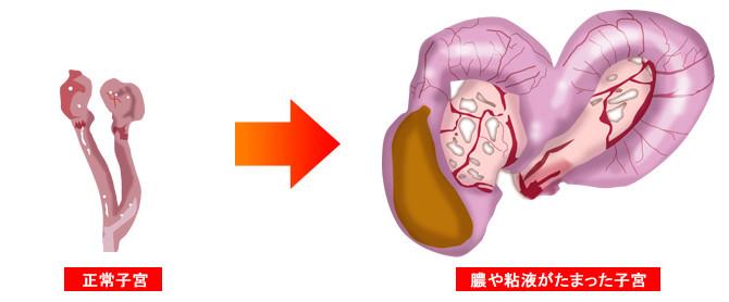 子宮蓄膿症