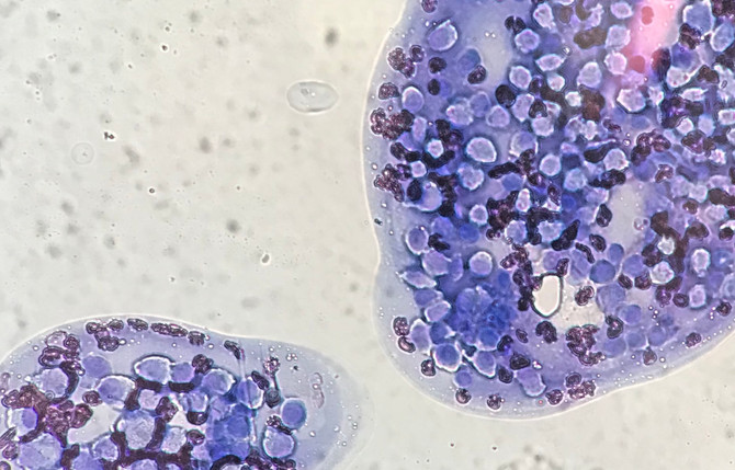 皮膚組織球腫