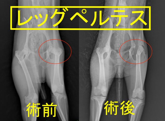 股関節の病気
