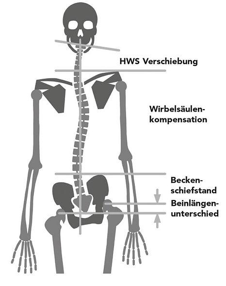 Beinlängendifferenz, Hüftschiefstellung, Wirbelsäule, Rückentherapie Münster