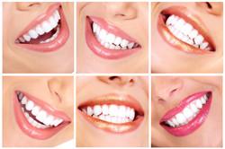 Esthétique dentaire blanchiment casa