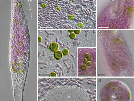 A microbial eukaryote with a unique combination of purple bacteria and green algae as endosymbionts