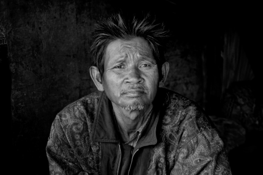 A man who worked at the Phnom Penh dumpsite for severla years, now suffers from health issues. 2008