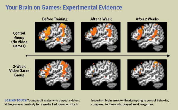 brain on games.png