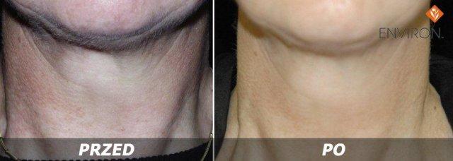 laserowe-love-raciborz-environ-kosmetyka-profesjonalna_thumb_l_cosmetic_6