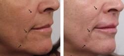 laserowe-love-raciborz-geneo-pollogen-kosmetyczka-zabiegi-na-twarz-lasery