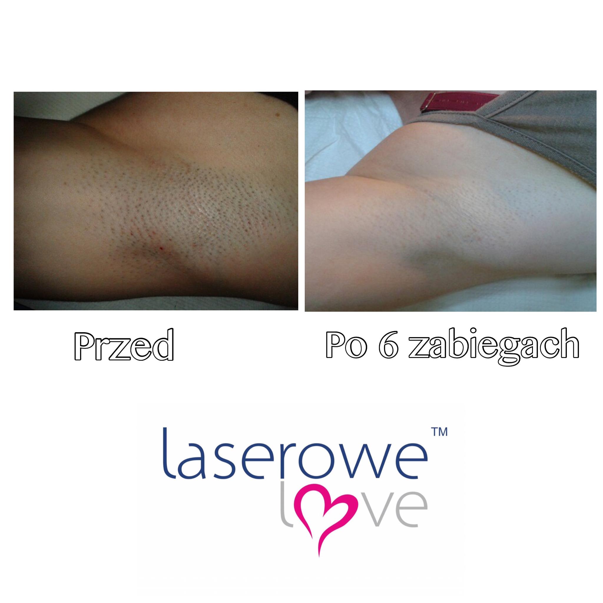 laserowe-love-raciborz-ightsheer-desire-trwale-skuteczne-usuwanie-owlosienia_7955 00.52.37