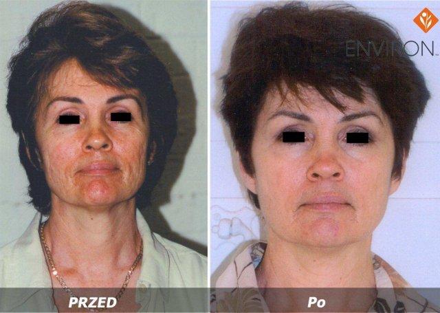 laserowe-love-raciborz-environ-kosmetyka-profesjonalna_thumb_l_ioenzyme_5
