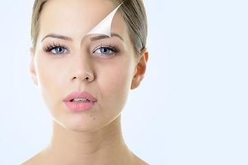 peelingi-medyczne-resurfacing-cosmelan-tca-fenolowy-ferulac-retiset-medycyna-estetyczna-laserowe-love-racibórz