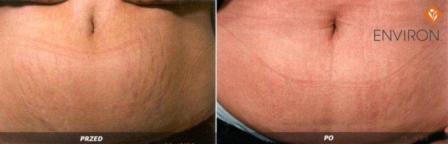 laserowe-love-raciborz-environ-kosmetyka-profesjonalna_thumb_l_ioenzyme_6