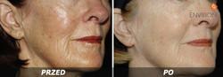 laserowe-love-raciborz-environ-kosmetyka-profesjonalna_thumb_l_cosmetic_9