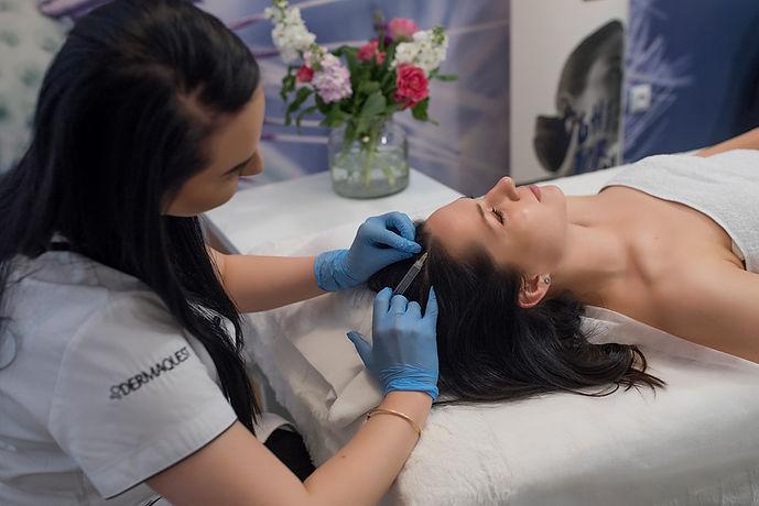 mezoterapia-igłowa-cytocare-racibórz-twarzy-skóry-głowy-oczu-zmarszczki-odżywienie-kwas hialuronowy