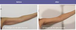 laserowe-love-raciborz-maximus-modelowanie-sylwetki-cellulit-pelikany-podnienienie-owalu-twarzy-zabi