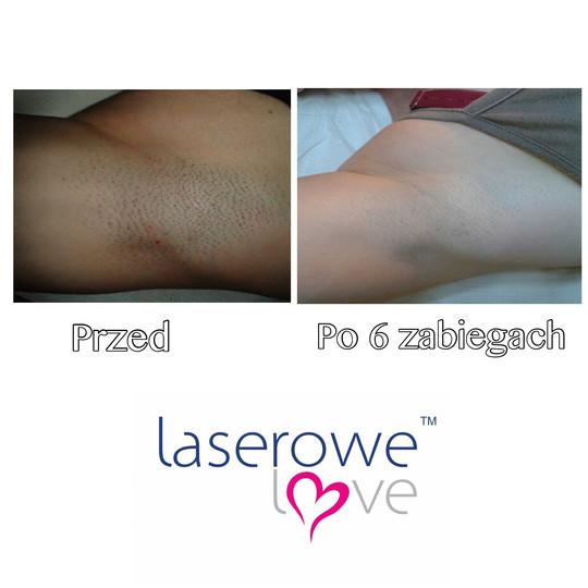 laserowe-love-raciborz-ightsheer-desire-