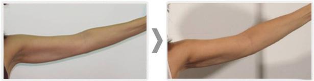 laserowe-love-raciborz-maximus-modelowanie-sylwetki-redukcja-blizn-potradzikowych-pelikanow
