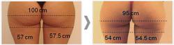 laserowe-love-raciborz-maximus-modelowanie-sylwetki-redukcja-blizn-potradzikowych-ujedrnienie-poslad
