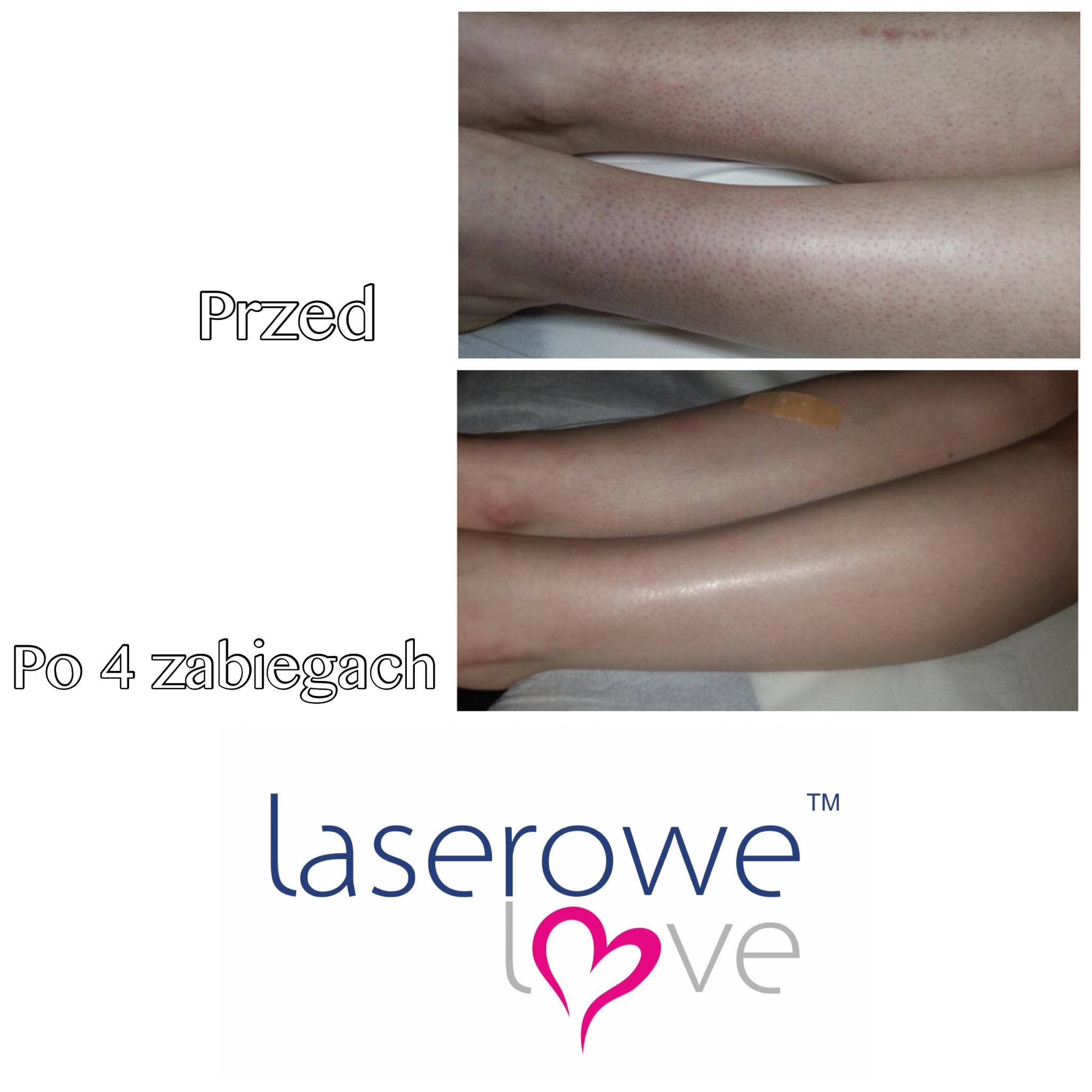 laserowe-love-raciborz-ightsheer-desire-trwale-skuteczne-usuwanie-owlosienia_7951 00.52.37