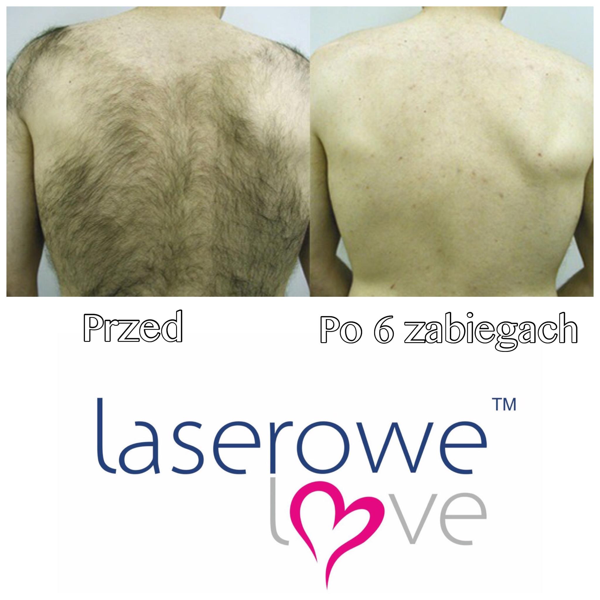 laserowe-love-raciborz-ightsheer-desire-trwale-skuteczne-usuwanie-owlosienia_7950 00.52.37