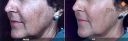 laserowe-love-raciborz-environ-kosmetyka-profesjonalna_thumb_l_ogolne_3