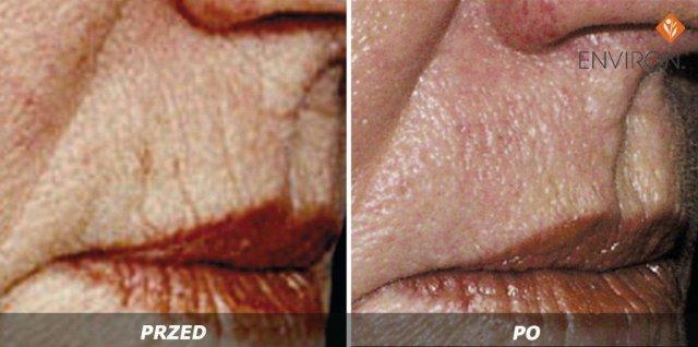 laserowe-love-raciborz-environ-kosmetyka-profesjonalna_thumb_l_medical_2
