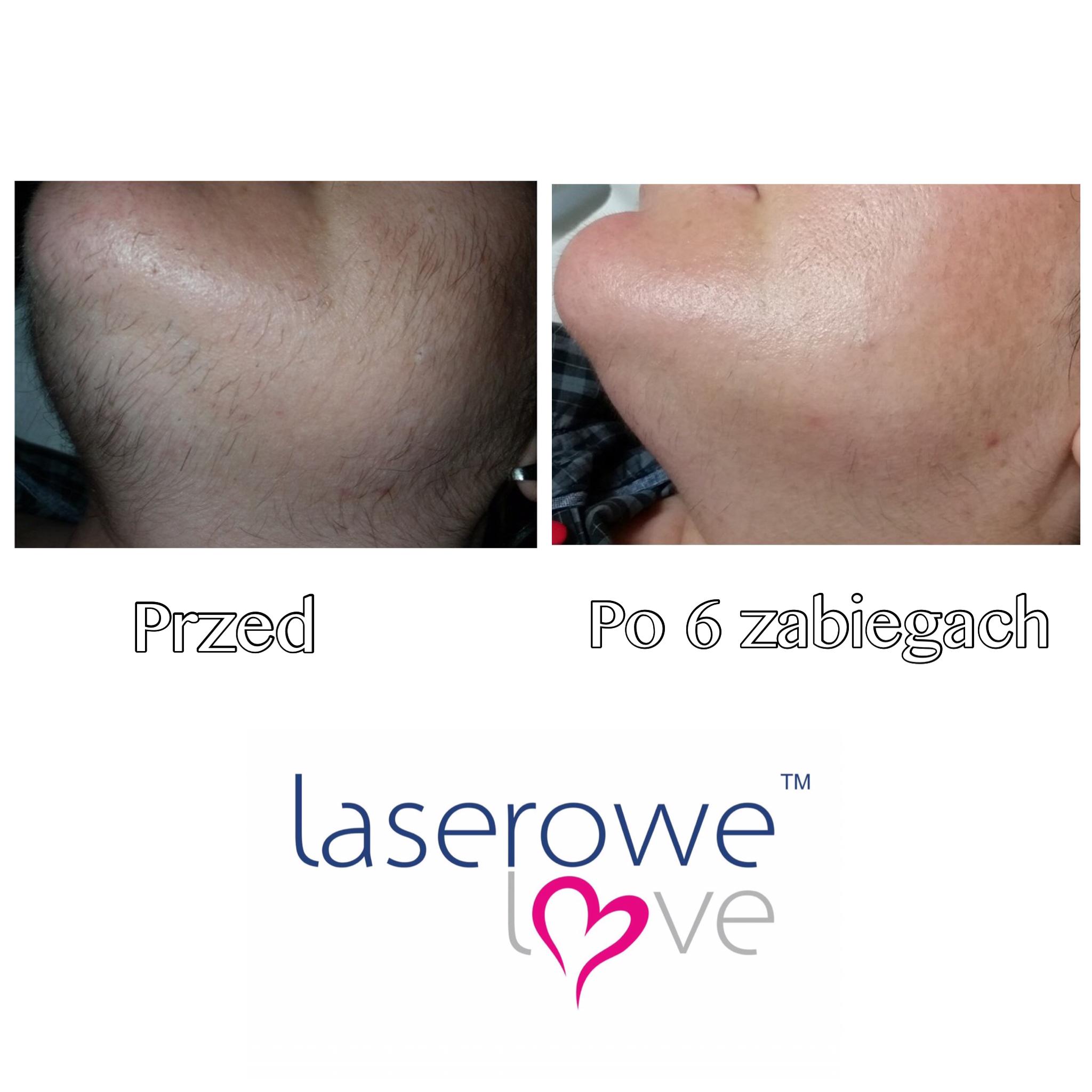 laserowe-love-raciborz-ightsheer-desire-trwale-skuteczne-usuwanie-owlosienia_7952 00.52.37