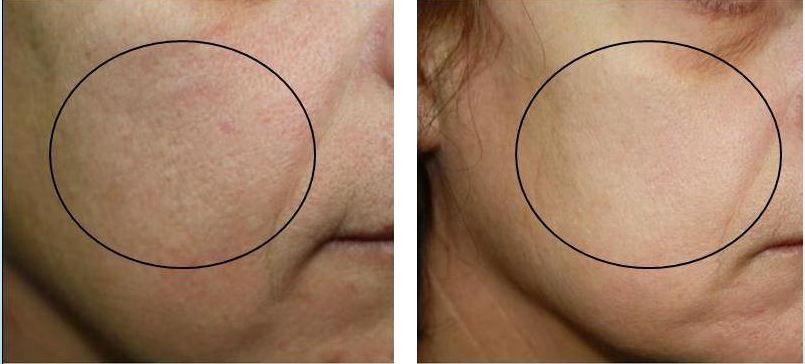 laserowe-love-raciborz-geneo-pollogen-kosmetyczka-zabiegi-na-twarz