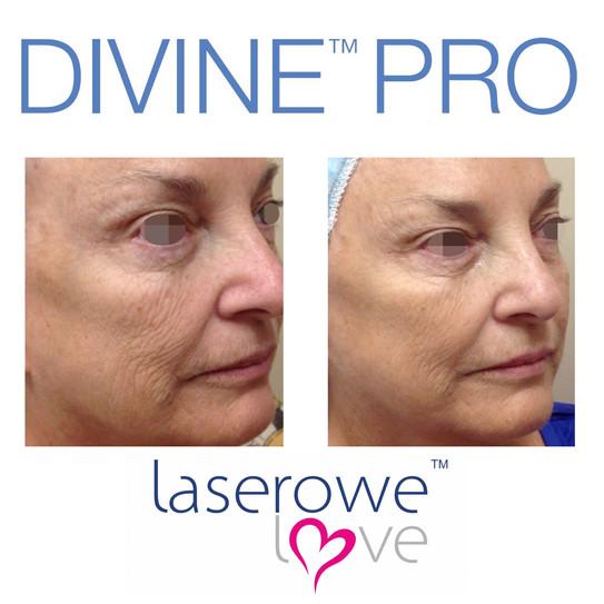 divine-wynajem-sprzętu-kosmetycznego-wynajem-lasera