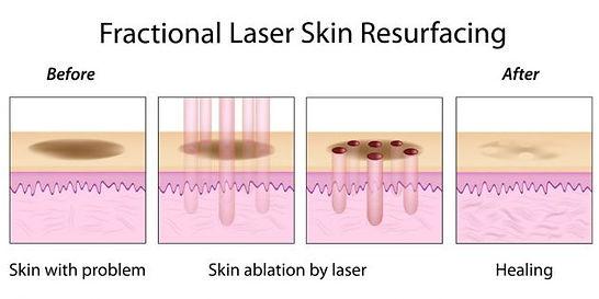 medart-co2-racibórz-laserowe-love-laser-frakcyjno-ablacyjny-resurfacing