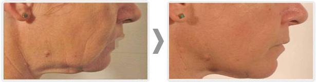 laserowe-love-raciborz-maximus-modelowanie-sylwetki-redukcja-blizn-potradzikowych-owal-twarzy