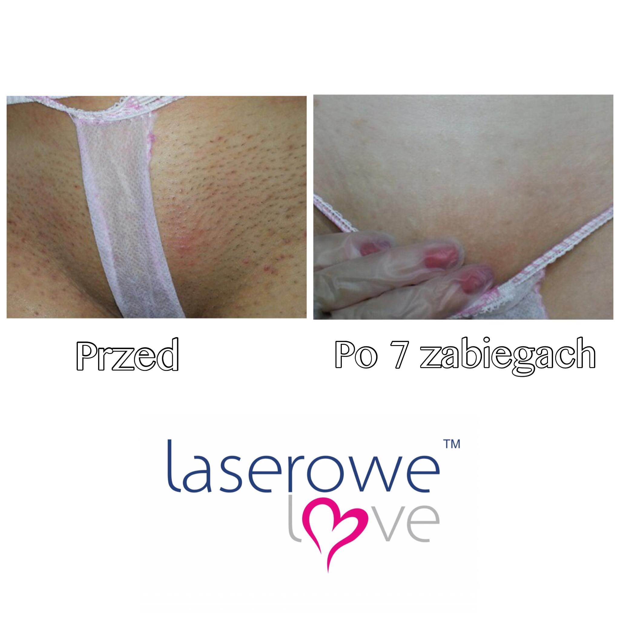 laserowe-love-raciborz-ightsheer-desire-trwale-skuteczne-usuwanie-owlosienia_7954 00.52.37