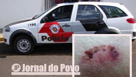 Doidão com arma falsa e municiada com pilhas, resiste a ação da PM e crava mordida em policial