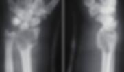 tumor de celulas gigantes