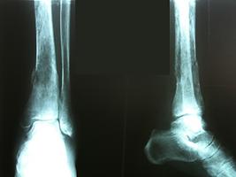 metastase óssea