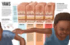 Yaws disease pathology