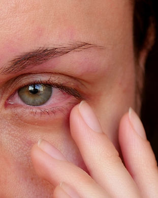 Dry Eye Visique Taradale Optometrists.jp