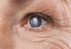 Cataracts Visique Blockhouse Bay Optomet