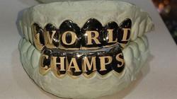 astros world champs grillz closeup_1510183701168_10992376_ver1.0_1280_720