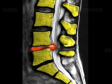 La hernia Discal con la Quiropráctica: 90% de excito!