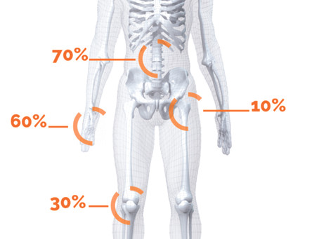 La artrosis mejora gracias al ajuste quiropráctico.