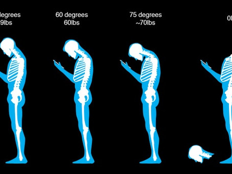 Postura de la cabeza adelantada....text neck: un problema de sociedad para las próximas generaciones