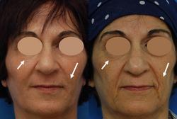 החדרת חוטים למתיחת קווי הפנים