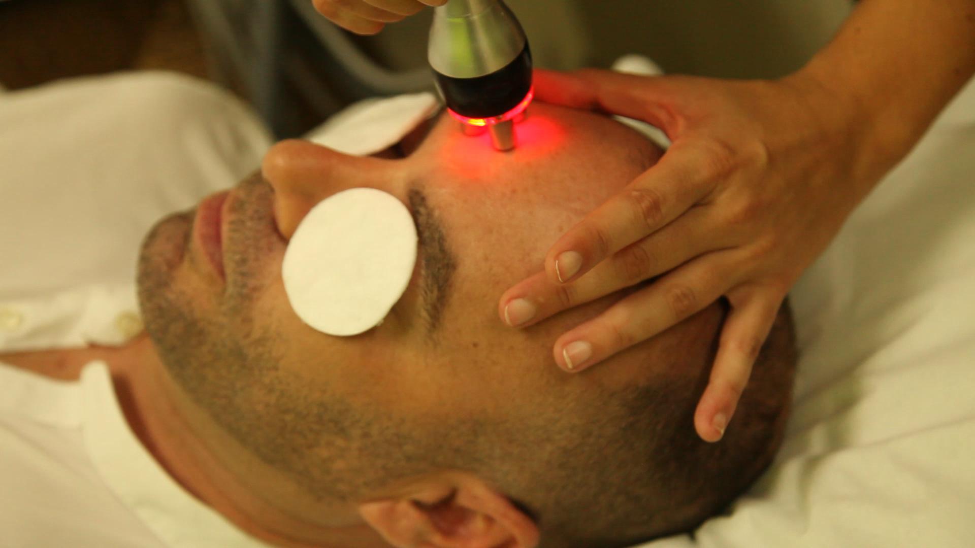 Radiofrecuencia facial masculina